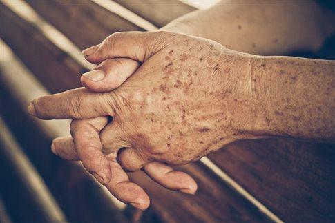 Ελπίδες για καλύτερη θεραπεία των δυσχρωμιών και των κηλίδων γήρανσης