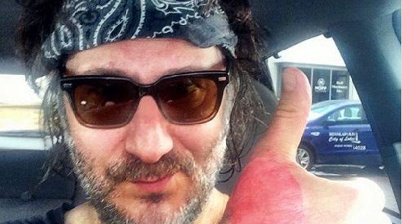 ΗΠΑ: 52χρονος υπέστη έγκαυμα δευτέρου βαθμού από... χυμό λάιμ!