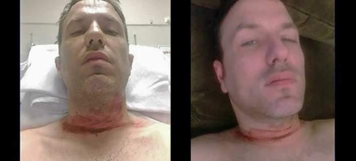 Ελληνο-Καναδός παριστάνει ότι κόπηκε ο λαιμός του και κάνει έρανο μέσω ίντερνετ