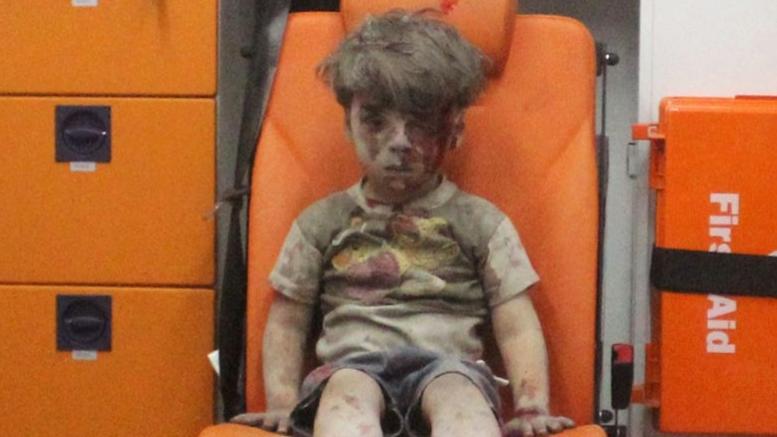 Ο Ομράν, το παιδί -σύμβολο του πολέμου, ένα χρόνο μετά