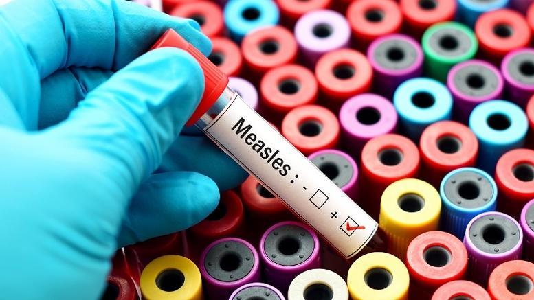 ΚΕΕΛΠΝΟ: Είμαστε σε φάση επιδημικής έξαρσης της ιλαράς