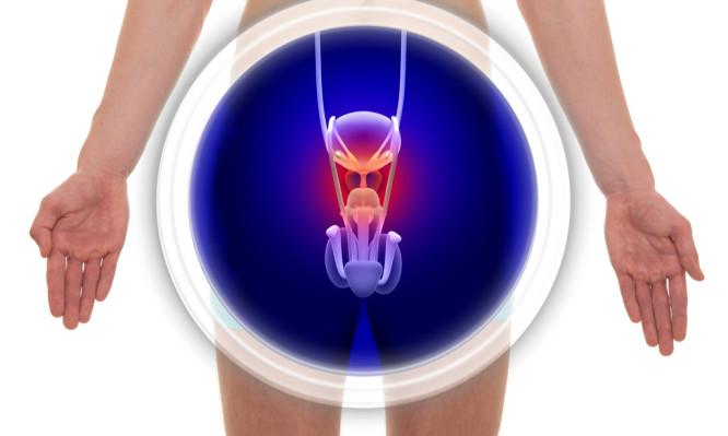 Καρκίνος του προστάτη: Τα πρώιμα συμπτώματα που πρέπει να γνωρίζουν οι άντρες