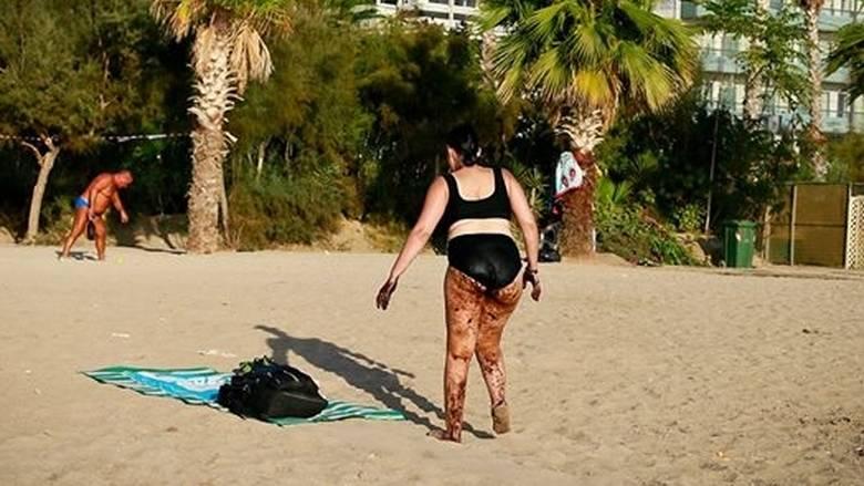 Λουόμενη βγαίνει από τη θάλασσα του Π. Φαλήρου καλυμμένη με πίσσα
