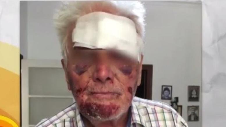 Ληστές βασάνισαν άγρια 90χρονο στο Γαλάτσι για 5 ευρώ