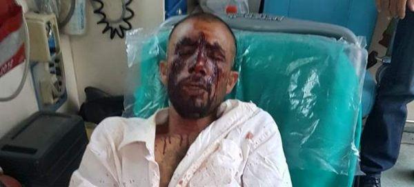 Δολοφονική επίθεση χρυσαυγιτών κατά μεταναστών