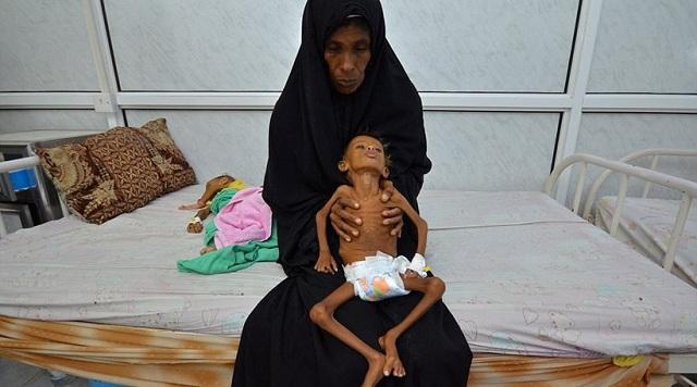 Ο ΟΗΕ προειδοποιεί για μεγάλο λιμό με εκατομμύρια θύματα στην Υεμένη