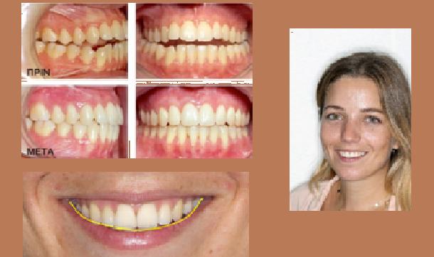 Οδοντιατρικός Σύλλογος Μαγνησίας: Απαραίτητη η ορθοδοντική θεραπεία