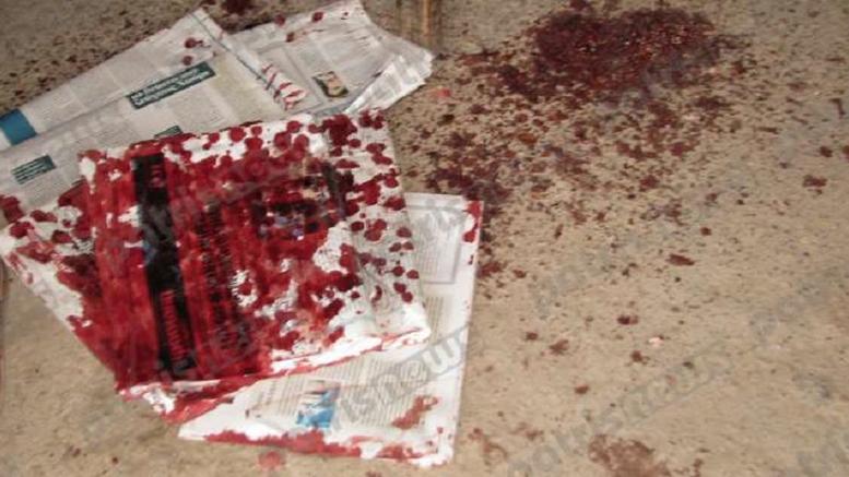 Σε κρίσιμη κατάσταση 73χρονος που αυτοπυροβολήθηκε στο πρόσωπο
