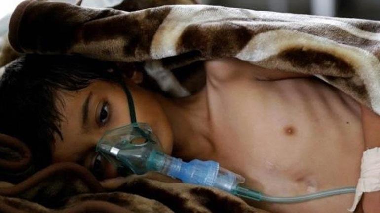 Από πείνα έχουν πεθάνει 40.000 παιδιά στην Υεμένη εφέτος
