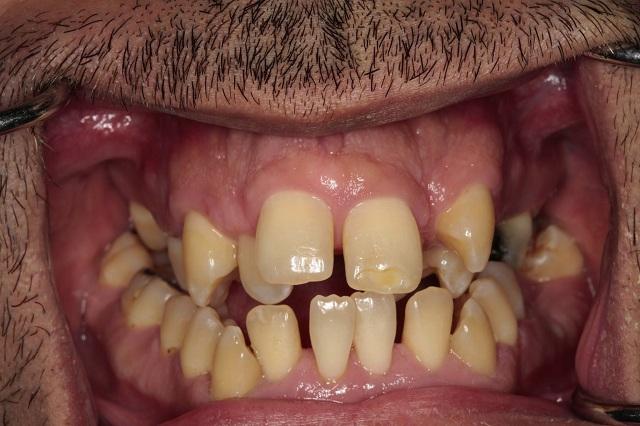 Οδοντιατρικός Σύλλογος Μαγνησίας: Η στοματική υγεία άρρηκτα συνδεδεμένη με τη συνολική υγεία