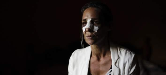 Η βία δεν έχει κοινωνική τάξη: Παντρεμένες, 40άρες, εργαζόμενες, μητέρες, τα συνήθη θύματα