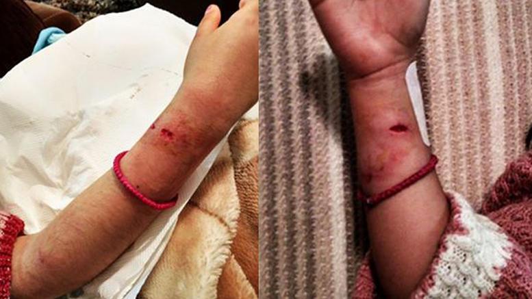 Επίθεση από σκυλιά δέχθηκε 7χρονο κοριτσάκι