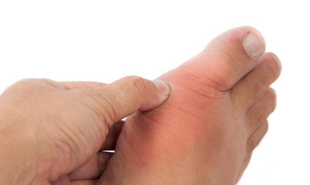 Ουρική αρθρίτιδα: Συμπτώματα, θεραπεία, διατροφή και όλα τα αίτια