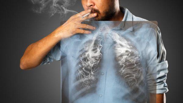 Ελλάδα: Ανδρες νυν ή πρώην καπνιστές θερίζει ο καρκίνος του πνεύμονα