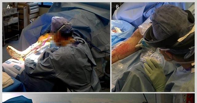 Έλληνας επιστήμονας επικεφαλής σε πρωτοποριακή χειρουργική επέμβαση