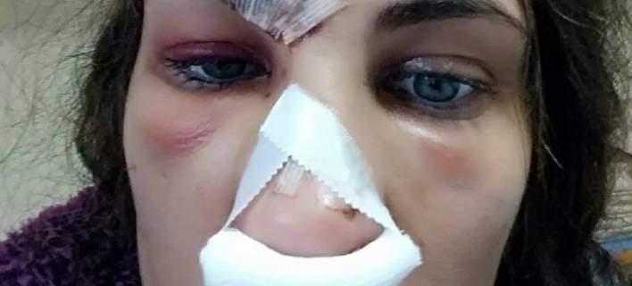 Λιπόθυμη, μέσα στα αίματα βρέθηκε μοντέλο στο σπίτι της στο Ναύπλιο