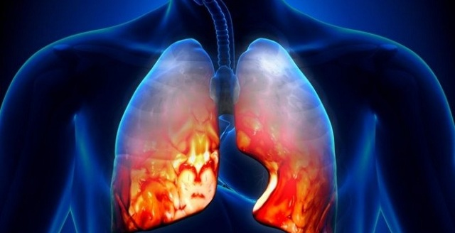 Πνευμονία: Αίτια, συμπτώματα, επιπλοκές και θεραπεία