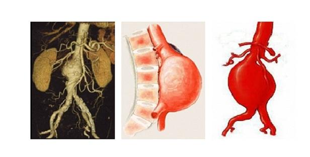 H έγκαιρη διάγνωση ανευρύσματος της κοιλιακής αορτής σώζει ζωές