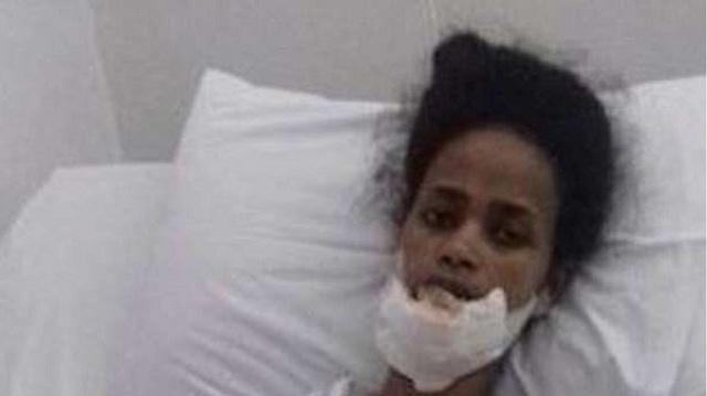 Αφρικανή «Σπυριδούλα» πήδηξε από μπαλκόνι για να γλιτώσει από την κακοποίηση των εργοδοτών