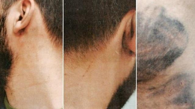 Πάτρα: Αθωώθηκαν αστυνομικοί που κατηγορούνταν για ξυλοδαρμό και βασανισμό 27χρονου