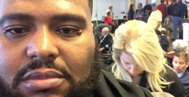 Aνάρτηση ενός άντρα στο FΒ δείχνει το τεράστιο πρόβλημα του ρατσισμού γύρω μας