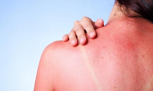 Έγκαυμα από ήλιο: Τα σωστά βήματα για θεραπεία και ανακούφιση