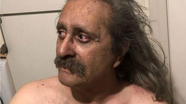 Συγκλονίζει η ανάρτηση ενός τυφλού επιζήσαντα στο Μάτι