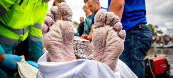 Έτσι είναι το σώμα ενός ανθρώπου μετά από κολύμπι 163 χλμ.