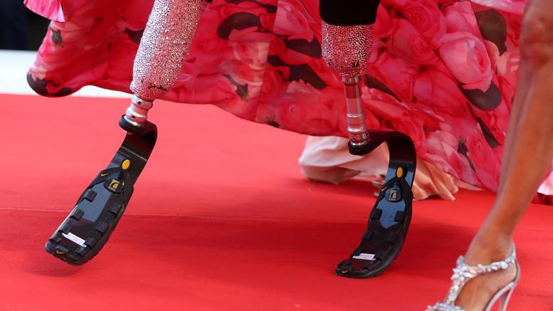 Μια παραολυμπιονίκης κλέβει την παράσταση στο κόκκινο χαλί [εικόνες]
