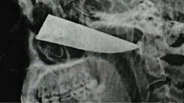 Έζησε με ένα μαχαίρι καρφωμένο στο πρόσωπο επί τέσσερις μέρες!