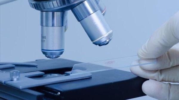 Τα ανθεκτικά βακτήρια στα αντιβιοτικά ευθύνονται για 33.000 θανάτους