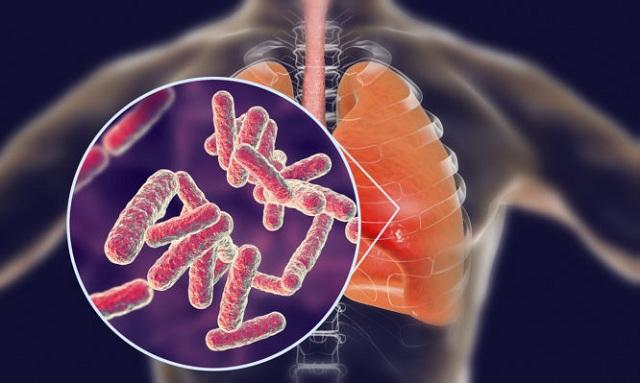 Παγκόσμια Ημέρα Πνευμονίας: Πότε το ...αθώο κρυολόγημα εξελίσσεται σε πνευμονία