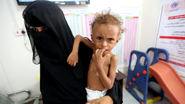Στοιχεία -σοκ: 85.000 παιδιά κάτω των 5 ετών πέθαναν από ασιτία στην Υεμένη