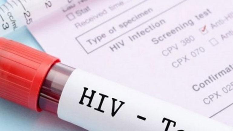 Ποια είναι τα πρώτα συμπτώματα της λοίμωξης από HIV στους άνδρες