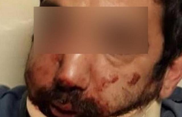 Τρία χρόνια φυλακή στον εργοδότη που χτύπησε τον ντελιβερά στη Θεσσαλονίκη