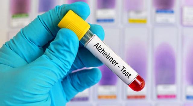 Τεστ αίματος εντοπίζει το Αλτσχάιμερ 16 χρόνια πριν εμφανιστούν τα πρώτα συμπτώματα