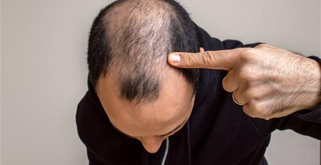 Eπιχειρηματίας έχασε τη ζωή του από μεταμόσχευση μαλλιών