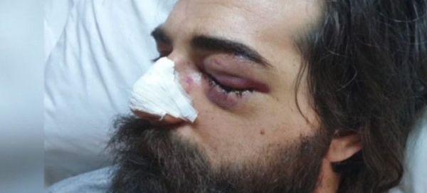 Φίλαθλος κινδυνεύει να χάσει το μάτι του από χτύπημα αστυνομικού