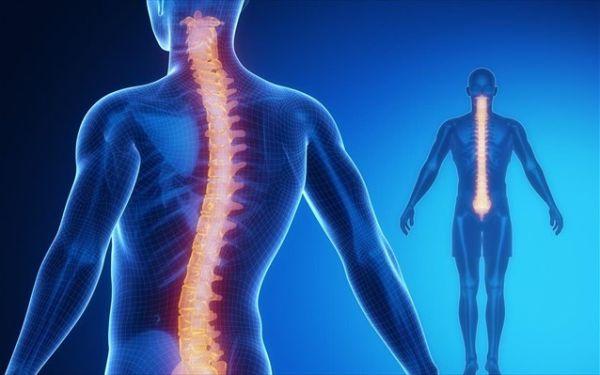 Δισκοκήλες αυχενικής μοίρας σπονδυλικής στήλης ~ Νευροχειρουργική αντιμετώπιση