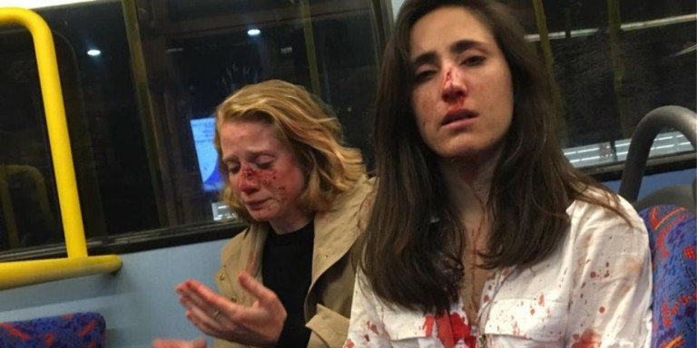 Ομοφοβική επίθεση σε δύο γυναίκες επειδή αρνήθηκαν να φιληθούν
