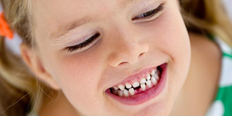 Βρετανία: Να απαγορευτεί η ζάχαρη από τα κυλικεία -Με χαλασμένα δόντια τα περισσότερα παιδιά
