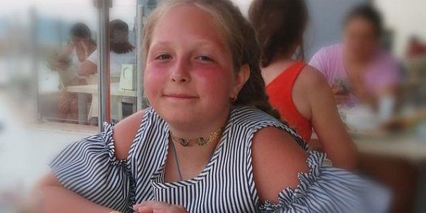 Νεκρή 12χρονη σε πισίνα ξενοδοχείου - Τη ρούφηξε η αντλία νερού