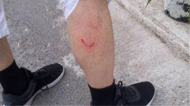 Στο νοσοκομείο 42χρονος μετά από επίθεση αδέσποτων σκύλων
