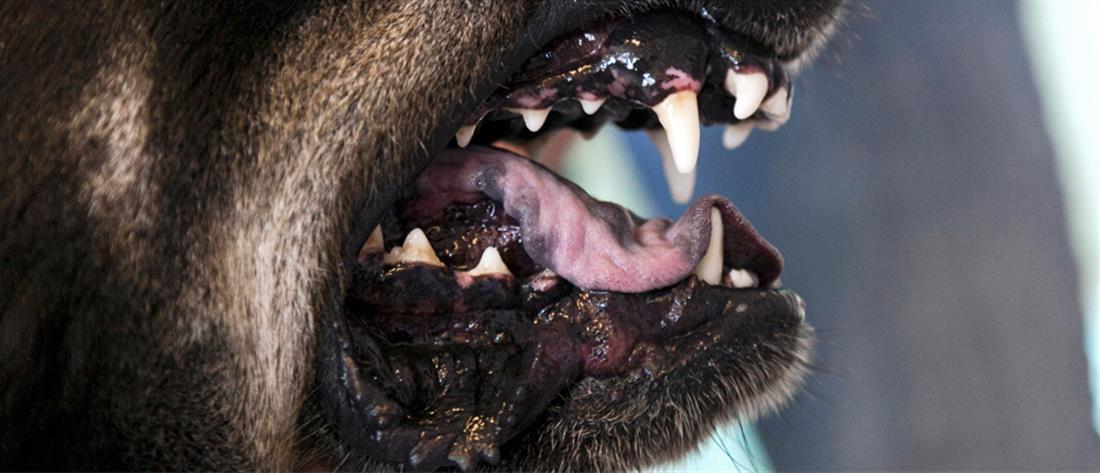 Σκύλος επιτέθηκε & τραυμάτισε 2χρονο κοριτσάκι