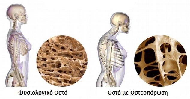 Προληπτικός έλεγχος και εκδήλωση ενημέρωσης για την οστεοπόρωση στον Βόλο