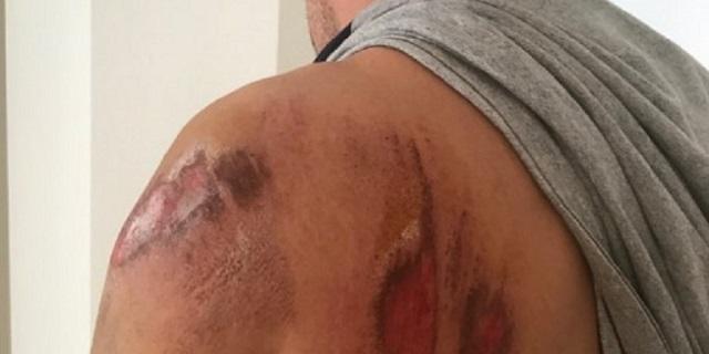 Στο νοσοκομείο υπαστυνόμος μετά από επίθεση σκύλου