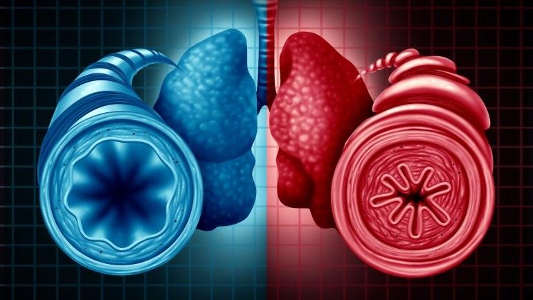 Οι επιστήμονες βρήκαν ότι το λίπος μπορεί να φράξει τους αεραγωγούς, όχι μόνο τις αρτηρίες