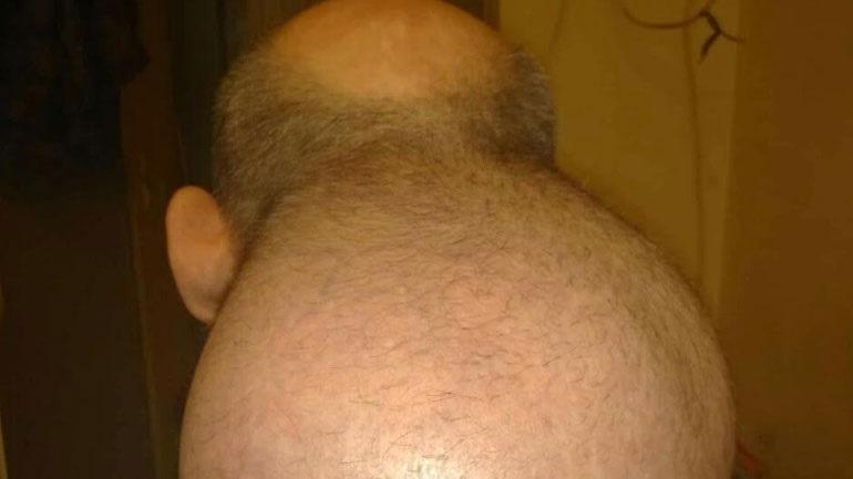 Κρατούμενος στις φυλακές Νιγρίτας εκπέμπει SOS- «Έβγαλα 2ο κεφάλι»