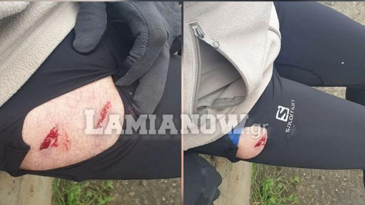Λαμία: Πήγαν για τρέξιμο & τους επιτέθηκαν λυκόσκυλα - Συγκλονίζουν οι φωτογραφίες από τα τραύματα
