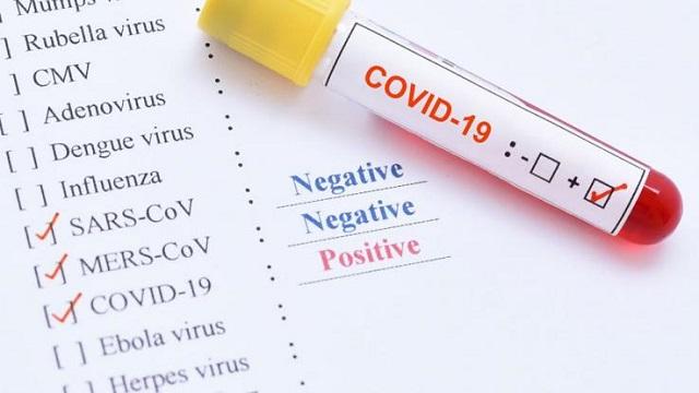 Λάρισα: 3 θετικά κρούσματα από το 133 δείγματα που εξετάστηκαν